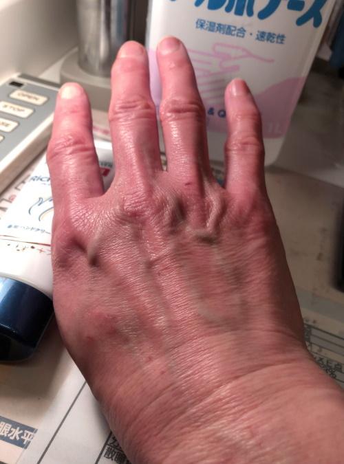 hand2020.jpg