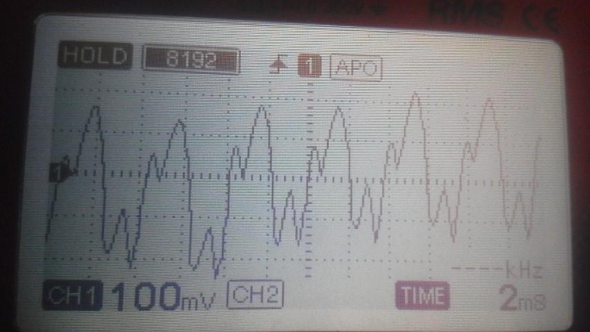 リプル異常波形
