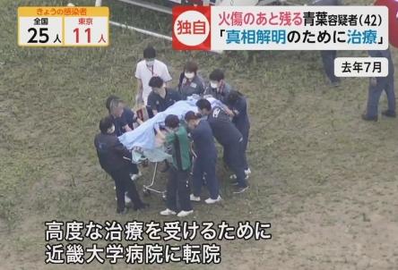 【悲報】京アニ放火犯・青葉の治療費、なんと2億円!!ワイらの税金が・・・・